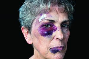 Signs of Elder Abuse Physical abuse           • Bruises, pressure marks, abrasions, burns           • Frequent calls to 911 or trips to the emergency room Emotional abuse • Depression or withdrawal from normal activities • Frequent arguments between older adult and caregiver             or family member Neglect, including self-neglect • Bedsores, poor hygiene, extreme weight loss, dehydration • Poor housekeeping, dirty dishes and unchanged linens • Failure to take medication or seek medical attention              when needed • Excessive hoarding of newspapers, mail, animals